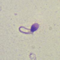 chem-opasni-patologii-spermatozoidov