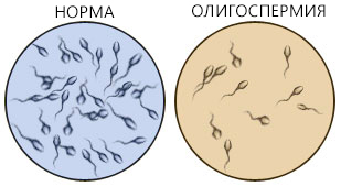 kak-uluchshit-kachestvo-spermi-gomeopatiey